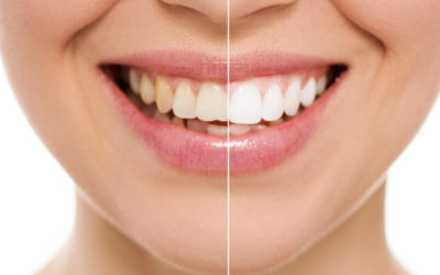 Benefits of Choosing Smile Makeovers
